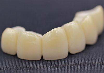 Zircone céramique, bridge, prothèse dentaire laboratoire Serrano