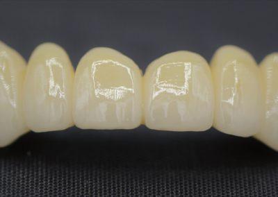 Zircone céramique, bridge antérieur, prothèse dentaire laboratoire Serrano