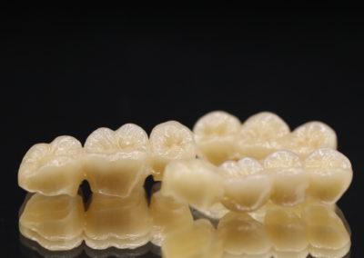 Céramo-céramique, zircone céramique, prothèse dentaire laboratoire Serrano