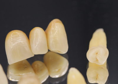 CCM,Ips Inline,céramique, prothèse dentaire laboratoire Serrano