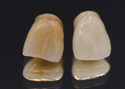 Incisive,Ips Inline,céramique, prothèse dentaire laboratoire Serrano