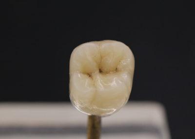 Ips Inline,céramique, prothèse dentaire laboratoire Serrano